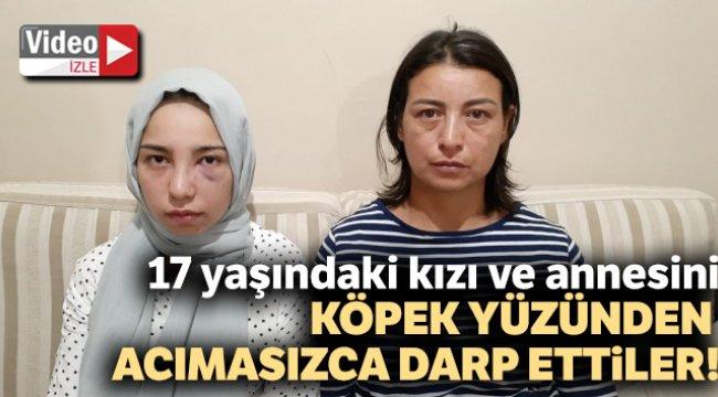 Ankara'da 17 yaşındaki kızı köpek yüzünden acımasızca darp ettiler