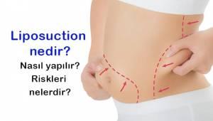 Liposuction Nedir? Hangi Durumlarda Yapılır?