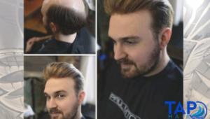 Tap Hair İle Protez Saça Yolculuk